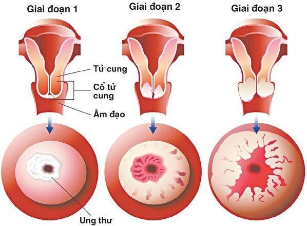 Tỷ lệ sống của người mắc ung thư cổ tử cung phụ thuộc nhiều vào giai đoạn phát hiện bệnh