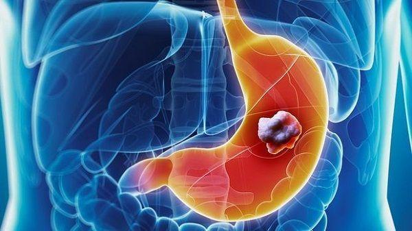 Ung thư dạ dày giai đoạn cuối là gì?