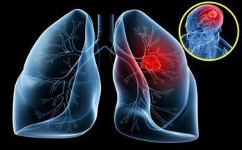Những triệu chứng ung thư phổi giai đoạn đầu không ngờ tới