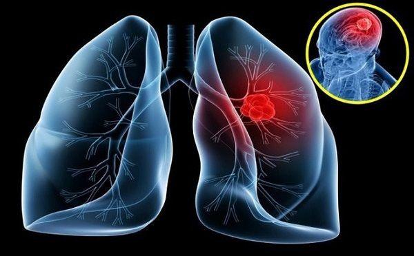 Ung thư phổi (Ảnh minh họa)