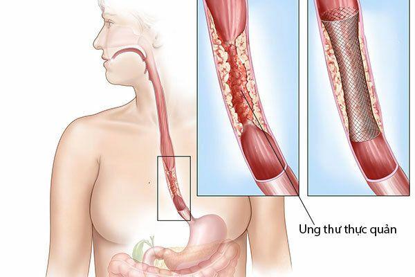 Ung thư thực quản có chữa được không