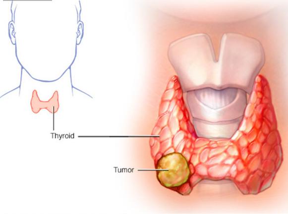 Ung thư tuyến giáp là một trong những bệnh có tiên lượng tốt nhất.