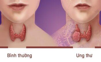Tìm hiểu các phương pháp điều trị sau phẫu thuật ung thư tuyến giáp