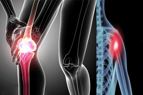 Đau nhức xương là triệu chứng K tuyến giáp di căn xương