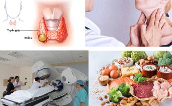 Bệnh ung thư tuyến giáp thể nhú có nguy hiểm không, điều trị như thế nào?