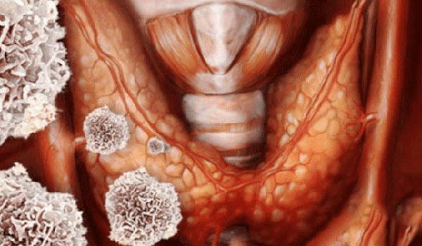 Ung thư tuyến giáp thể nhú chiếm 70 - 80% trên tổng các ca mắc bệnh