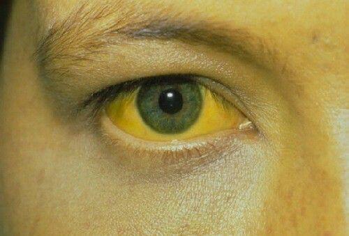 Vàng da, vàng mắt là một trong những dấu hiệu điển hình của ung thư tuyến tụy