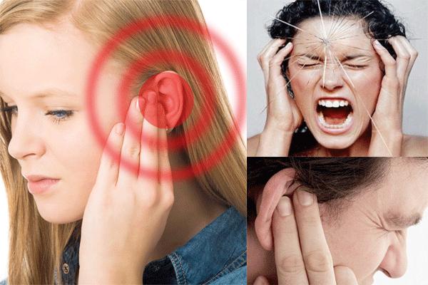 Ù tai một bên là triệu chứng ung thư vòm họng