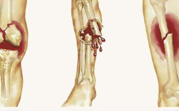 Những điều cần biết về ung thư xương