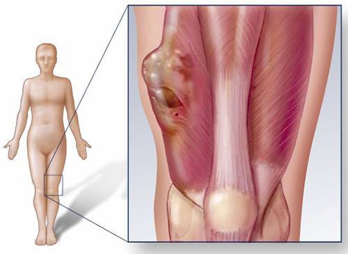 Ung thư xương có chữa được không là mối quan tâm của bệnh nhân và người nhà