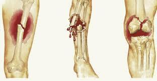 Xương yếu và dễ gãy là một trong những dấu hiệu điển hình của ung thư xương