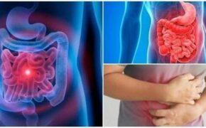 Biểu hiện ung thư đại tràng – bạn có biết?