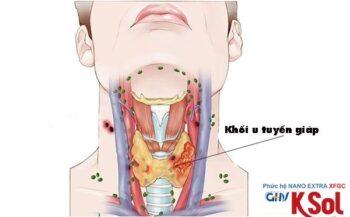 Bệnh nhân điều trị ung thư tuyến giáp có nên dùng KSol không?