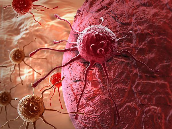 Ung thư buồng trứng di căn rất nhanh ở giai đoạn 4