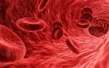 Chẩn đoán và cách điều trị bệnh ung thư máu