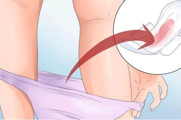 Chảy máu âm đạo bất thường là một trong những biểu hiện của bệnh ung thư cổ tử cung giai đoạn đầu