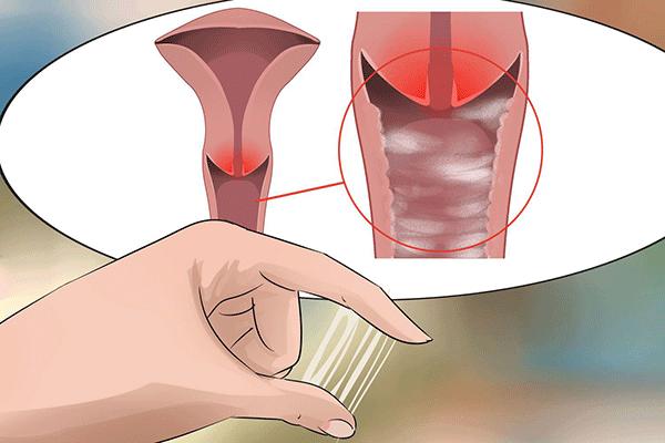 Dịch âm đạo tiết ra nhiều là một trong những biểu hiện của bệnh ung thư cổ tử cung giai đoạn đầu