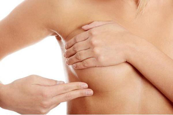 Nổi u cục ở vú là một trong dấu hiệu cảnh báo mắc ung thư vú cần nhận biết sớm