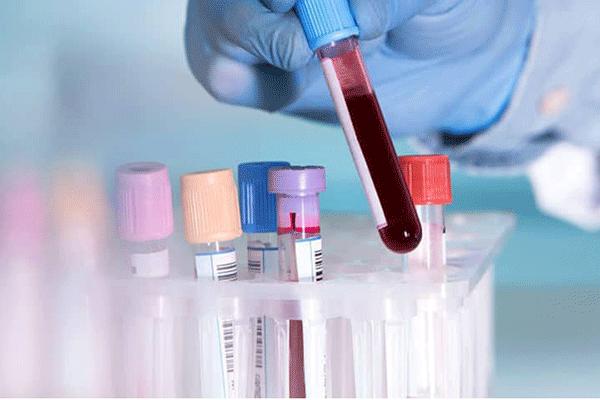 Chẩn đoán mắc ung thư máu bằng phương pháp xét nghiệm máu