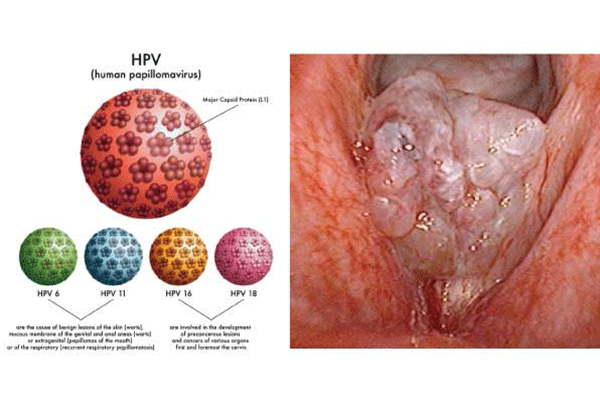 Nhiễm virus HPV là một trong những nguyên nhân gây ung thư cổ tử cung