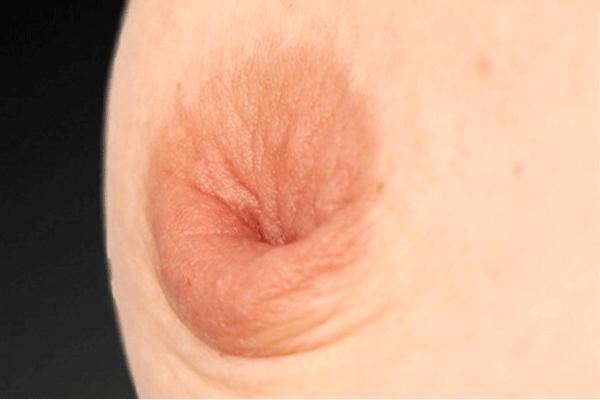 dấu hiệu của bệnh ung thư vú
