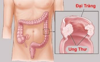 Làm thế nào để nhận biết dấu hiệu ung thư đại tràng sớm và biện pháp phòng ngừa