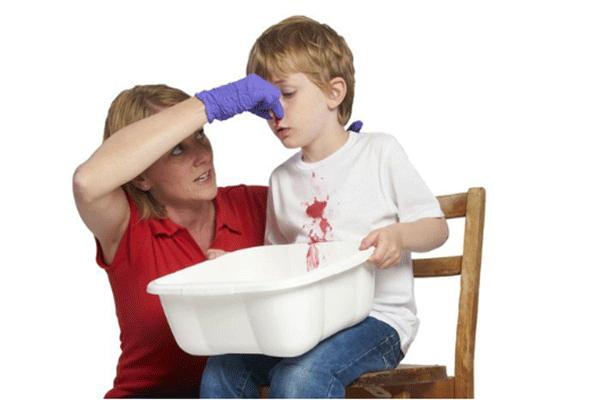 Chảu máu cam là một trong những biểu hiện của bệnh ung thư máu ở trẻ em cần được nhận biết sớm