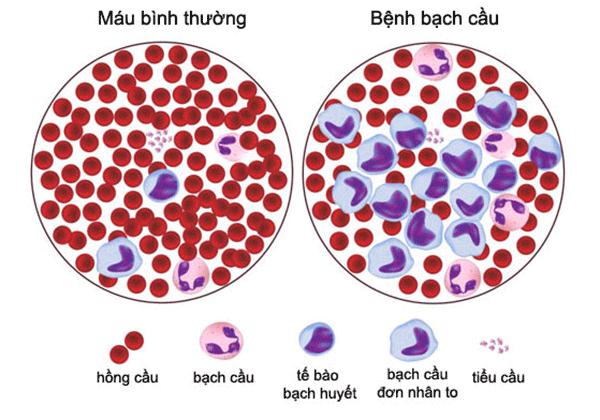 Hình ảnh nhận biết ung thư máu (ung thư bạch cầu, bệnh bạch cầu)