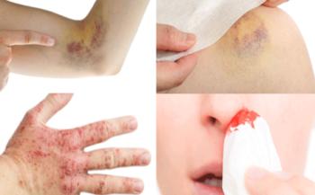 Làm thế nào để nhận biết dấu hiệu ung thư máu sớm?