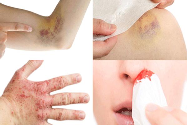 Da xuất hiện các vết bầm tím, chảy máu cam là những triệu chứng cảnh báo mắc ung thư máu không nên chủ quan