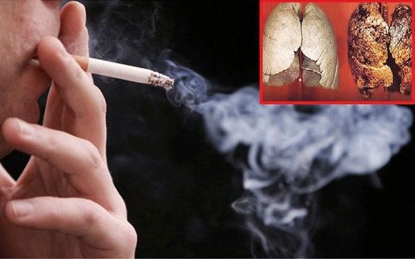 Những người có thói quen hút thuốc lá thường xuyên nên tầm soát để phát hiện sớm ung thư phổi