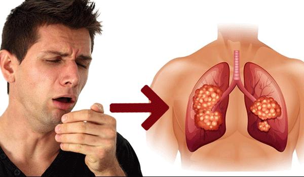 Ho nhiều là một trong dấu hiệu cảnh báo mắc ung thư phổi bạn cần chú ý