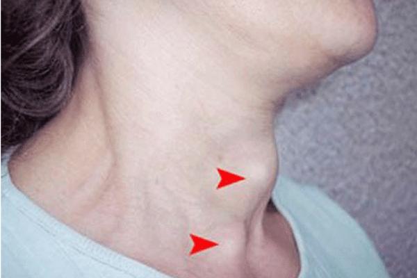 Xuất hiện khối u ở cổ là một trong những triệu chứng ung thư vòm họng giai đoạn đầu