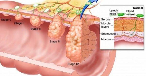 Ung thư đại tràng sống được bao lâu