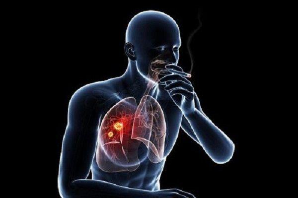 Tránh xa khói thuốc lá phòng ngừa ung thư phổi