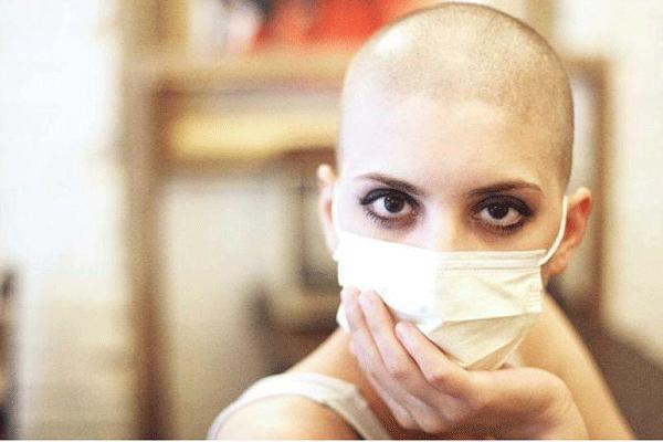 Rụng tóc là một trong những tác dụng phụ khi điều trị ung thư bằng hóa chất