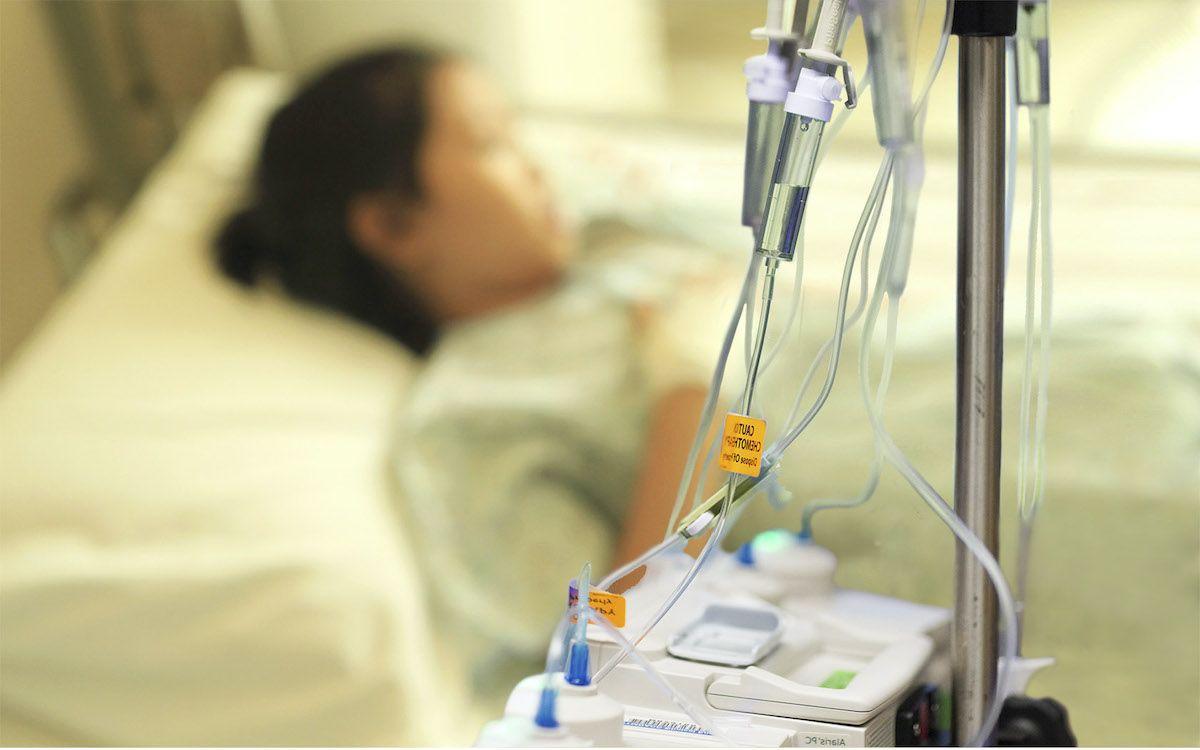 Phương pháp hóa trị trong điều trị ung thư đại tràng giai đoạn cuối