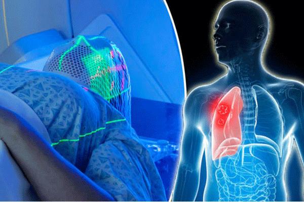 Tác dụng phụ khi xạ trị ung thư ảnh hưởng đến phổi và não trong quá trình điều trị