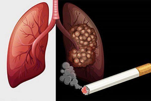Hút thuốc lá là một trong những nguyên nhân gây ung thư phổi