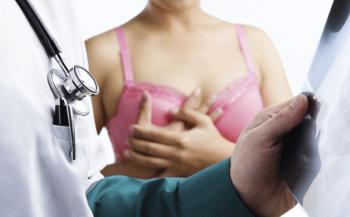 Tìm hiểu về triệu chứng ung thư vú ở nữ giới và cách điều trị