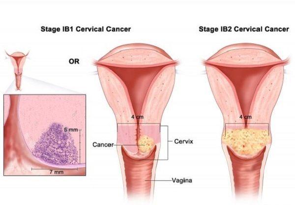 Xét nghiệm ung thư cổ tử cung