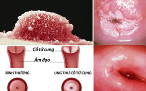Biểu hiện ung thư cổ tử cung giai đoạn đầu cần nhận biết sớm
