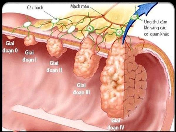 Việc phát hiện ung thư đại tràng giai đoạn đầu khả năng chữa khỏi đạt đến 90%