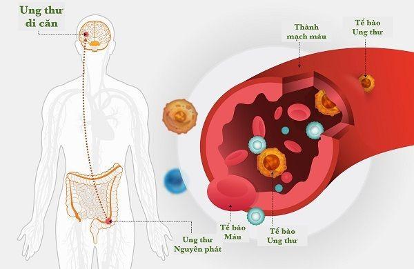 Ung thư đại tràng giai đoạn cuối đa di căn đến các cơ quan trong cơ thể