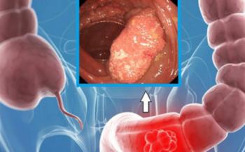 Tìm hiểu về dấu hiệu ung thư đại trực tràng và phương pháp điều trị