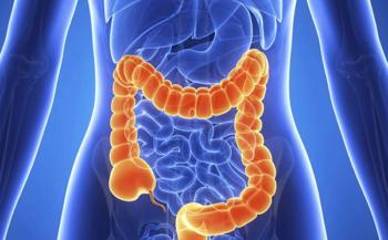Ung thư đường ruột có chữa được không và lời giải đáp