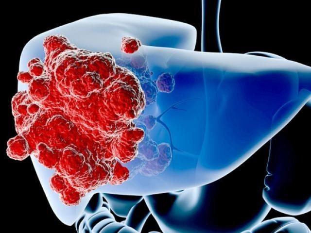 Bệnh nhân ung thư gan giai đoạn đầu thường không có biểu hiện rõ ràng