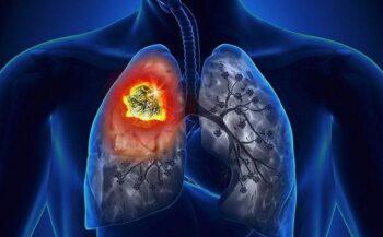 Các triệu chứng ung thư phổi giai đoạn cuối không nên bỏ qua