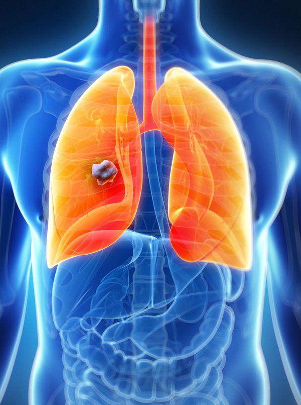 Ung thư phổi giai đoạn cuối có lây không