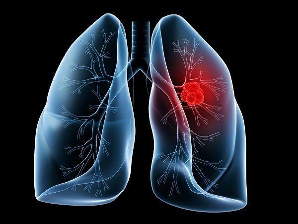Ung thư phổi là các khối u ác tính bắt nguồn từ phế quản phổi